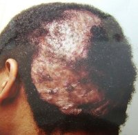 dissecting cellulitis