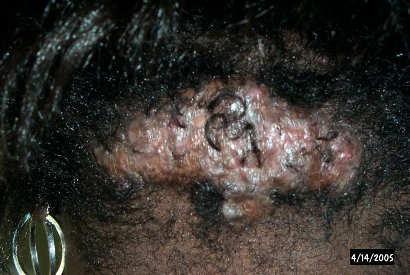 Scalp Disorders on Female With Advanced Akn
