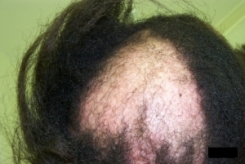Advanced Cicatricial Alopecia