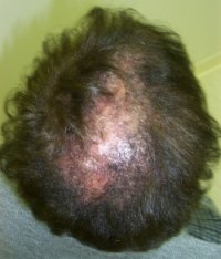 Scalp diseases the second type of hair loss that occurs is called discoid lupus this version is associated with patchy areas on the scalp with red brown urmus Choice Image
