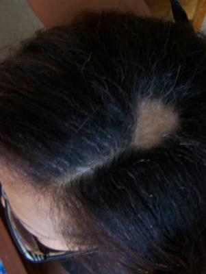 My head got tender and then a patch of hair fell  out...Is it Stress or a Thyroid Problem or Both???